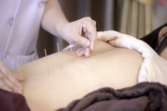 The physiotherapist is doing acupuncture on the back of a female. Patient. Patient is lying down on a bed Royalty Free Stock Photography