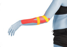 Physiotherapy for elbow pain, aches and tension. Physiotherapy treatment with therapeutic tape for elbow pain, aches and tension. It is also used for prevention stock photo