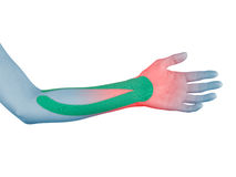 Physiotherapy for wrist pain, aches and tension. Royalty Free Stock Images