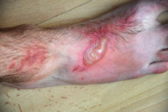 Phytophotodermatitis, cutaneous phototoxic skin inflammatory Royalty Free Stock Photography