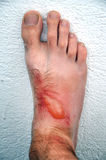Phytophotodermatitis, cutaneous phototoxic skin inflammatory Royalty Free Stock Photos