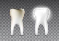 Piękny realistyczny dentysty wektorowy ustawiający gnijący i biały błyszczący ząb na przejrzystym tle ilustracji