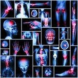Pièce de rayon X de collection d'opération humaine et orthopédique, la maladie multiple Images libres de droits