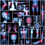 Pièce de rayon X de collection d'opération humaine et orthopédique, la maladie multiple (fracture, goutte, rhumatisme articulaire Images libres de droits