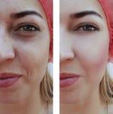 Piękna dziewczyny twarz marszczy przed i po procedurą, nabrzmiewający zdrowie trądzika beautician kosmetologii medycyny pacjent zdjęcia stock