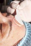 Piękna traktowanie: Lekarka stosuje gel przed transmituje podnośnego proca Obrazy Royalty Free