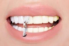 Piękni biali seksowni zęby dla kobiet blond Zęby bieleje dentystą Zdjęcie Royalty Free