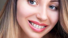 Piękny Żeński uśmiech z Ligating brasami Ortodontyczny Tr zdjęcie royalty free