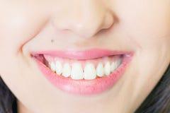 Piękny kobieta uśmiech z zdrowy zębów bieleć zdjęcia stock