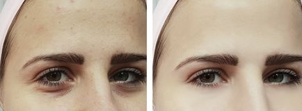 Piękny młoda dziewczyna trądzik, stłuczenia pod oko terapią przed i po procedurami zdjęcie stock