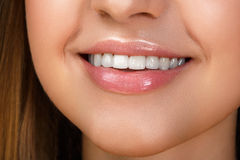 Piękny uśmiech z dobieranie zębami Fotografia Royalty Free