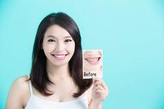 Piękna skincare kobieta Zdjęcie Stock