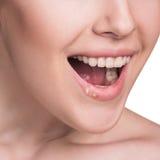 Piękne wargi infekowali herpes wirusa Zdjęcie Stock