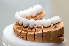 Piatto del dente della porcellana dello zirconio in dentista Store fotografia stock libera da diritti