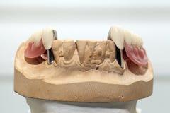 Piatto del dente della porcellana dello zirconio in dentista Store fotografia stock
