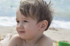 Piccolo bambino con il rossore sulla pelle, soffrente dalle allergie fotografia stock