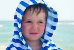 Piccolo bambino con il rossore sulla pelle, soffrente dalle allergie alimentari fotografie stock
