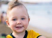 Piccolo bambino con il rossore sulla pelle, soffrente dalle allergie alimentari fotografia stock libera da diritti