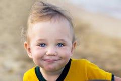 Piccolo bambino con il rossore sulla pelle, soffrente dalle allergie alimentari immagine stock libera da diritti