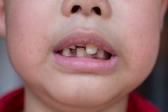 Piccolo bambino e denti rotti fotografie stock