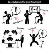 Pictograma de la espondilosis y del Spondylolisthesis y del tratamiento quirúrgico (el viejo hombre sufre al dolor de espalda (do Fotografía de archivo