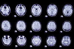 Picture of computed tomography the brain. Black Royalty Free Stock Photo