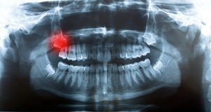 Picture x-ray human skull. X-ray image of human skull stock photo