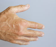 A picture of swollen male hand. Closeup Stock Photography