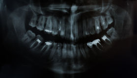 Picture of a tooth jaw stock image