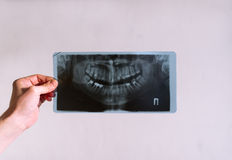 Picture of a tooth jaw. Stock Photo