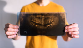 Picture of a tooth jaw. The patient holds a picture of the teeth in hand royalty free stock images