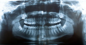 Picture x-ray jaw Royalty Free Stock Photography