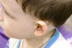 Little boy turning on hearing aid, closeup stock images
