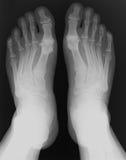 Pie de la radiografía Foto de archivo libre de regalías