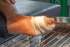Pie de las úlceras de la diabetes Fotos de archivo libres de regalías