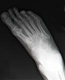 Pie derecho x-ray#2 Foto de archivo libre de regalías