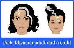 Piebaldism的例证在成人和孩子的 库存图片