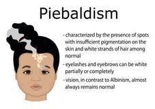 Piebaldism的例证 免版税库存照片