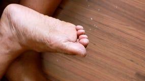 Pied du ` s d'athlète - pedis de tinea, infection fongique Photo stock