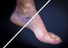 Pied humain avec des veines variqueuses avant et après images libres de droits
