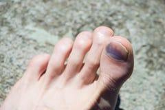 Piede caucasico con la grande unghia del piede blu Immagini Stock Libere da Diritti