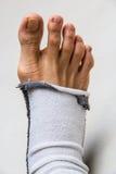 piede con il povero calzino Fotografie Stock