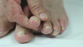Piedi del ` s della donna con le micosi delle unghie del piede archivi video