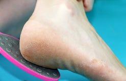 Piedi di piede di pulizia con una sega o una spazzola Pulizia dei piedi del fungo fotografie stock