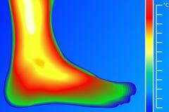 Piedino umano Visore termico con la scala di temperatura Immagine Stock