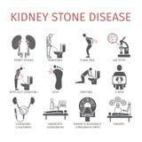 Piedras de riñón Síntomas, tratamiento Iconos fijados Muestras del vector Fotografía de archivo libre de regalías