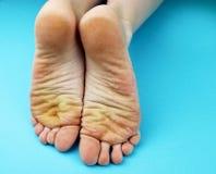 Pieds de pied de nettoyage avec une scie ou une brosse Nettoyage des pieds du champignon images libres de droits