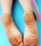 Pieds de pied de nettoyage avec une scie ou une brosse Nettoyage des pieds du champignon image libre de droits