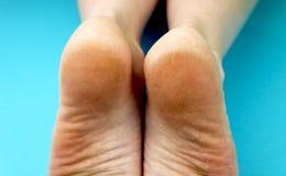 Pieds de pied de nettoyage avec une scie ou une brosse Nettoyage des pieds du champignon images stock