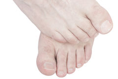 Pieds irritants. Photo stock